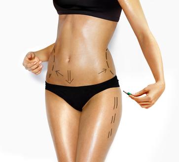 cirugía plástica, ¿Por qué quieres someterte a esta intervención?, autoestima, imágen positiva, lipoescultura o liposucción, apariencia física,