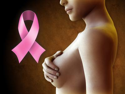 mala alimentación,cáncer de mama,prevenir enfermedades, sanar, fortalecer al organismo, alimentación, dieta balanceada, efectos de la quimioterapia,