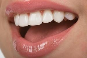 sensibilidad dentaria,enfermedades periodontales,arginina, hipersensibilidad dentaria,dolor agudo e inesperado,nervios de la dentadura,