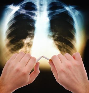 día mundial del cáncer de pulmón,17 de noviembre, fumar, padecimiento, enfermedad, cáncer de pulmón,  innovadoras opciones de tratamiento,factores de riesgo,condiciones ambientales, terapias biológicas innovadoras, calidad de vida,Coalición Global contra el Cáncer de Pulmón,