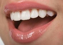 salud bucal, dientes, ortodoncia,odontología, endodoncia, sonrisa bonita, láser terapeutico o blando, láser quirurgico o duro, nuevas tecnologias.