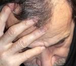 Dr. Gutiérrez Bravo, Vitiligo y alopecia, manchas sin color, herencia, factores, factor inmunológico, melanocitos, tratamientoo, pigmentación, protectores solares.
