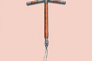 métodos anticonceptivos, diafragma, método anticonceptivo en desuso, ventajas, desventajas, DIU,