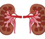 riñones, equilibrio químico, función renal, dos riñones sanos, ¿Cómo prevenir una enfermedad renal?, hipertensión, evita el exceso de grasas,