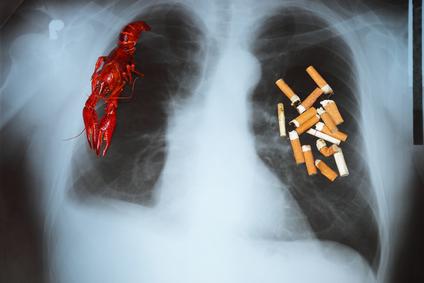 función pulmonar, EPOC,  enfermedad controlable,  broncodilatador, consumo de tabaco, bronquitis crónica, enfisema pulmonar, enfermedad pulmonar, Enfermedad Pulmonar Obstructiva Crónica