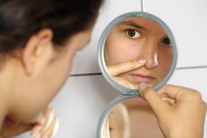 Fundación Mexicana para la Dermatología,¿Qué factores lo originan?, Genéticos,Hormonales,Propionibacterium acnes,Tratamiento,Prevención, males dermatológicos, salud de la piel,