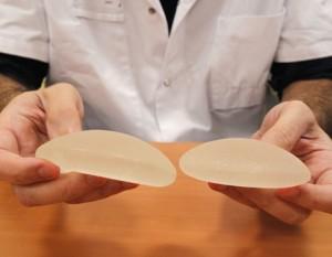 Cuidado con los implantes