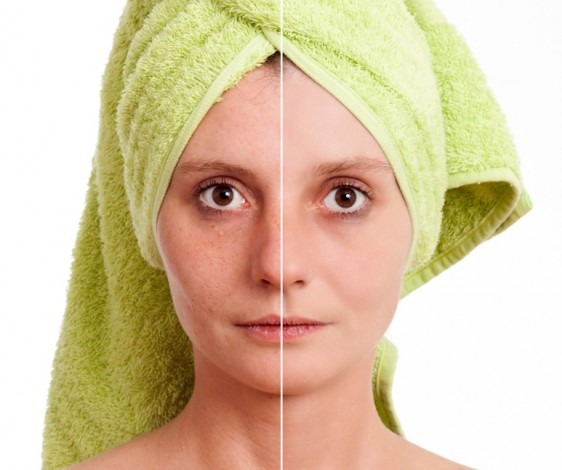 El uso de peelings o el láser, pueden empeorar las manchas si se realizan de manera inadecuada, advierte especialista.