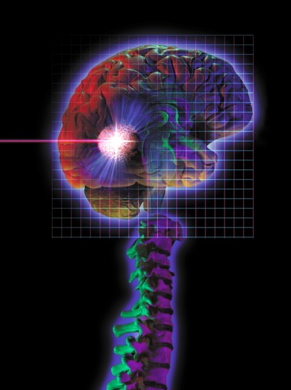 Cada año ocurren 130 mil muertes por enfermedad vascular o infarto cerebral