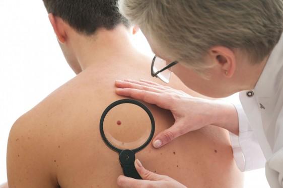 Dermatólogo inspeccionando la piel de un paciente.