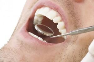 Uno de los principales problemas que causa la inseguridad en las personas, es la falta de salud bucal.
