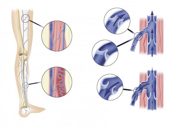 Arterias de las piernas