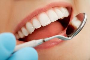 Acercamiento a una persona con boca abierta y un espejo dental