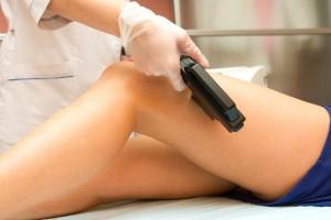 Una especilista depilando con laser las piernas de una mujer
