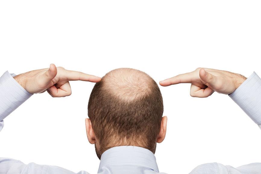 si una persona pierde los folículos capilares a causa de la alopecia androgenética, estos no se regeneran de manera natural.
