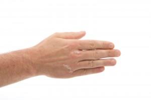 Con causas que aún no están completamente claras, la psoriasis es una enfermedad que en México representa el 2% de las enfermedades que afectan la piel.