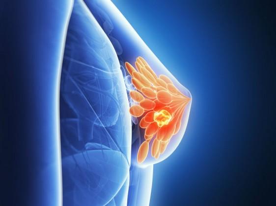 """Dra. Sandhya Pruthi, especialista de la Clínica de Mamas de Mayo Clinic. """"Los estudios han demostrado que los cambios en el estilo de vida disminuyen el riesgo de cáncer de mama, hasta en las mujeres que corren alto riesgo"""