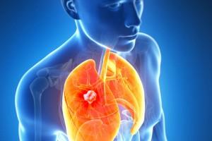 En México 18 personas fallecen cada día a causa del cáncer de pulmón.