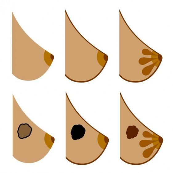 Se pueden presentar diferentes síntomas en el cáncer de mama.