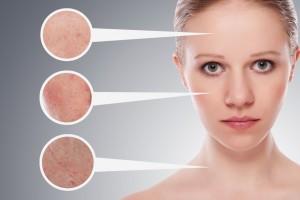 Enfermedades como la psoriasis, la dermatitis atópica o la rosácea pueden aparecer o agravarse con el frío.