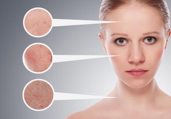 El esmog, el polvo y la radiación solar penetran en las capas más profundas de la piel, produciendo resequedad, granos y oscurecimiento
