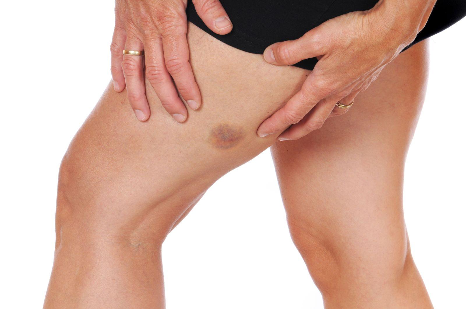 Las hemorragias frecuentes causadas por la hemofilia pueden dañar articulaciones y músculos
