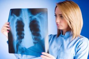médica revisando radiografía