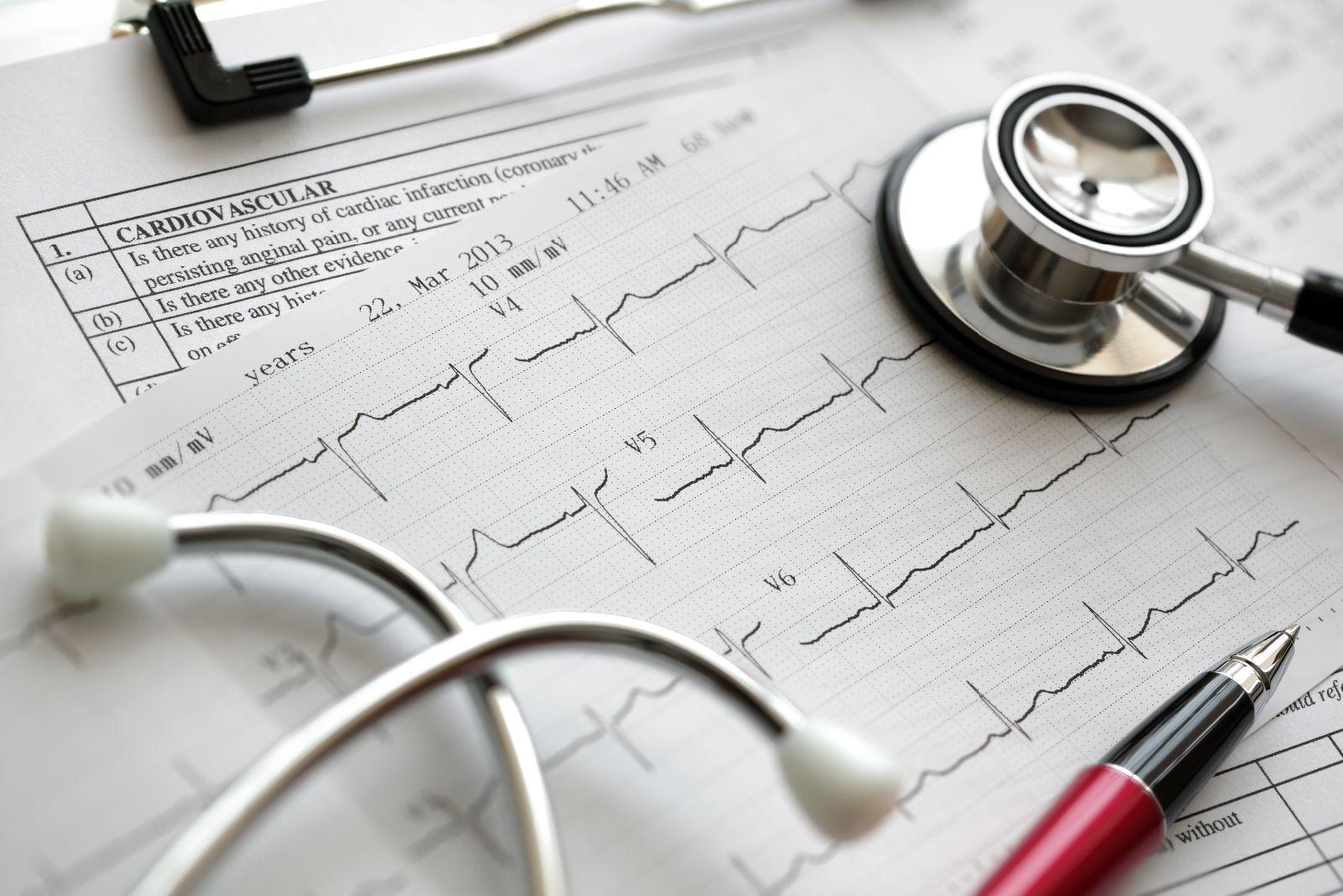 Estetoscopio y pluma sobre papeles con electrocardiograma y en otro papel la palabra cardiovascular impresa