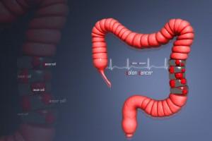 Diagrama de un colon humano