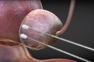 Ilustración 3D prostata con dos instrumentos alargados en su interior
