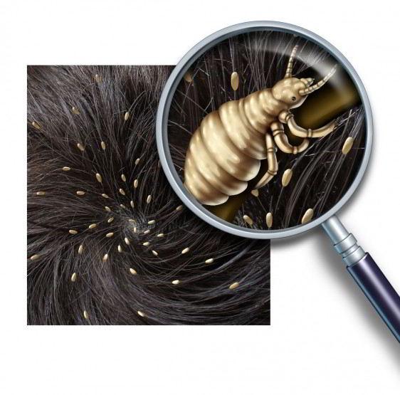Si se tiene la sospecha de que hay presencia de piojos, los mejores lugares en donde buscarlos son: detrás de las orejas, a lo largo de la parte posterior del cuello y cerca del cuero cabelludo.