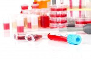 Muestras de sangre en tubos de ensayo