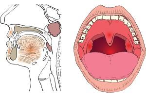 Ilustracipon de la ubicación de las amígdalas y/o adenoides