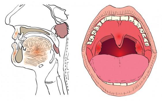 Cuándo quitar amígdalas y/o adenoides