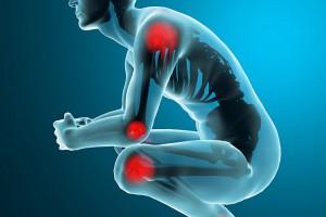 La artritis reumatoide causa severos dolores en hombros, codos, muñecas, tobillos, rodillas, es decir las principales articulaciones.