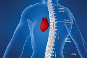 """Reducción en arritmias, dolor de pecho y fatiga son algunos de los principales beneficios observados en la aplicación del """"estimulador de espina dorsal""""."""