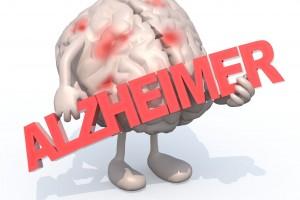 """Ilustración de cerebro con pies y manos cargando letrero con la palabra """"Alzheimer"""""""