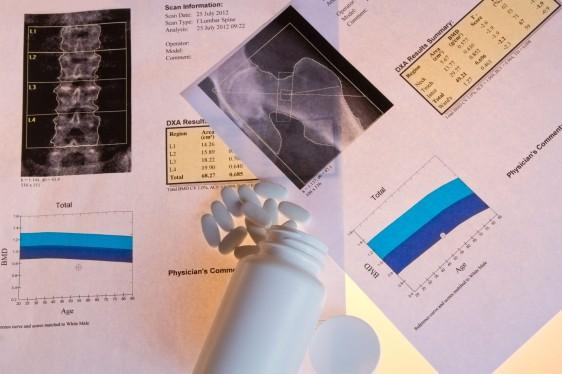 hojas con datos médicos sobre huesos y pastlllas blancas