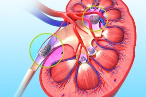 Los riñones filtran los desechos y los fluidos excedentes de la sangre, que son eliminados del cuerpo en la orina. Los cálculos renales se forman cuando la orina contiene más sustancias formadoras de cristales, como calcio, oxalato y ácido úrico, que las que puede diluir.