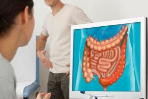 En México, el 5% de la población general presenta síntomas relacionados con la enfermedad hemorroidal