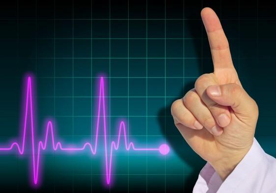 Mano de medico levantando el dedo índice al fondo un electrocardigrama
