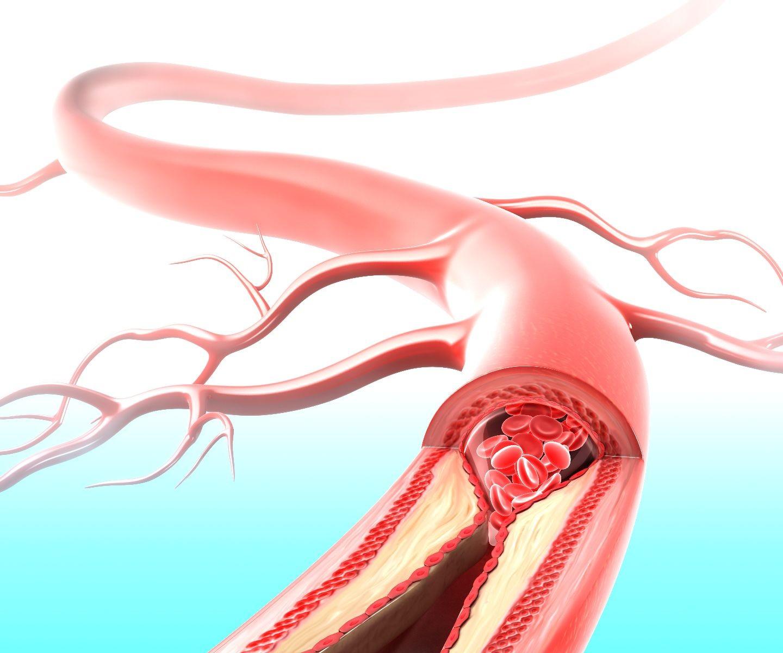 Arteria bloqueándose por depósitos de colesterol