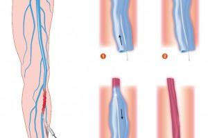 Ilustración de venosas varicosas