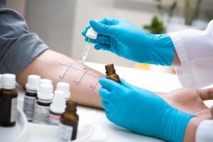 Médico aplica una prueba de alergia en el brazo de un paciente