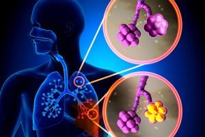 Ilustración de alvéolos normales comparados alvéolos con neumonía
