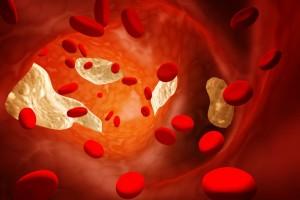 Un estudio encuentra factores de estilo de vida que podrían endurecer las arterias
