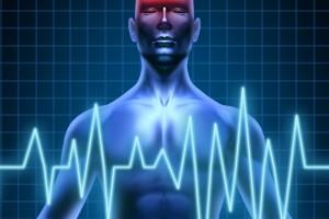 Ilustración de un accidente cerebrovascular
