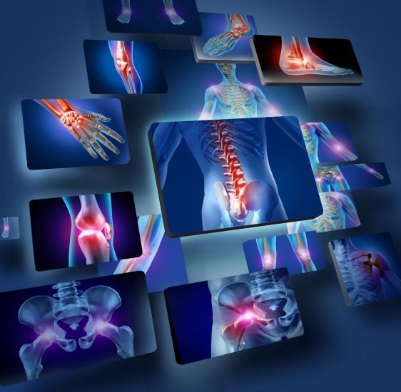 Ilustración con imagenes de articulaciónes del cuerpo humano