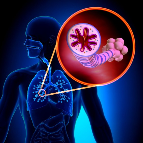 ilustración de un pulmón con acercamiento a bronquios cerrados