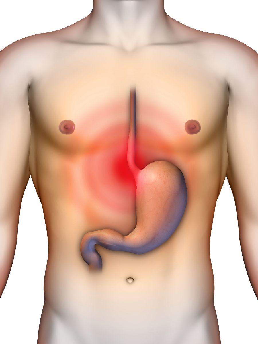 Ilustración de un estomago